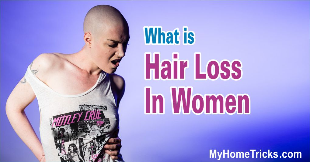 What is Hair loss in women