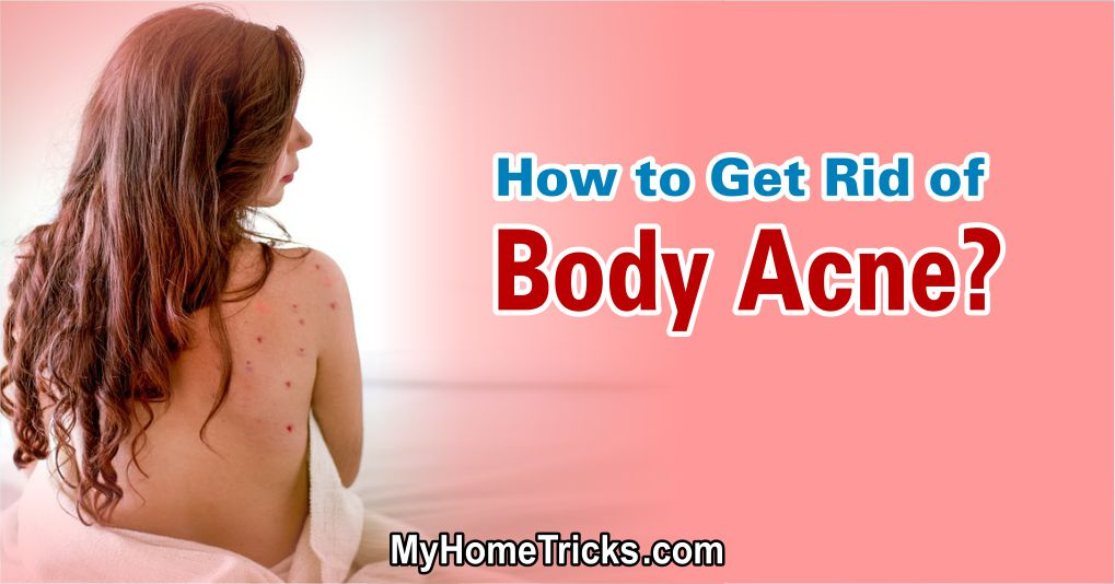 How to Get Rid of Body Acne Problem 1