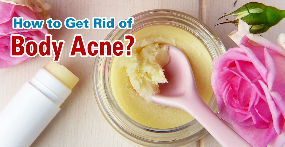 Get Rid of Body Acne